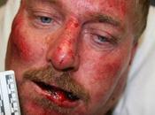 Alabama Deputies Revenge Beatdown Handyman, Man's Vocal Advocate Murdered