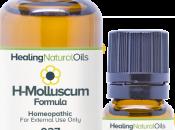 Healing Oils Molluscum Contagiosum