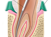 Need Know About Root Canal Treatment