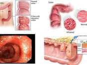 Ulcerative Colitis Ayurvedic Treatment