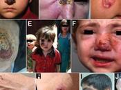 Syrian Refugees Health Hazard Bringing Flesh-eating Leishmaniasis Disease