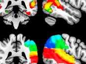 Self Temporo-parietal Junction