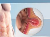 Umbilical Paraumbilical Hernia Adults
