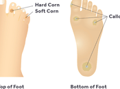 What Causes Foot Calluses Corns?
