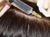 Mesotherapy Hair Loss Growth Works?