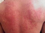 Natural Treatment Idiopathic Thrombocytopenic Purpura