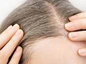 Home Remedies Prevent Stop Premature Graying Hair| Hair Masks