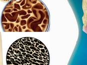 Management Osteoporosis Ayurveda Natural Treatment