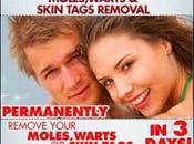 What Skin Mole Main Characteristics This Growth?