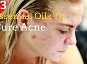 Essential Oils Acne You'll Wish You'd Known About Sooner