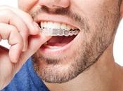 Facts That Will Help Consider Invisalign