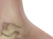 Pain Heel Causes Treatments Spur