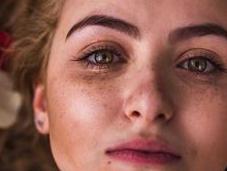 Hyperpigmentation Treatment, Types Causes Dermatologist