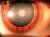 Cataract Causes, Symptoms Treatment