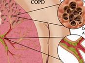 Chronic Obstructive Pulmonary Disease (COPD) Treatment Ayurveda