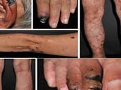 Treatment Urticarial Vasculitis Through Ayurveda