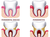 Ayurvedic Treatment Help Periodontal Disease?