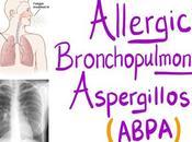 Alternative Treatment Allergic Bronchopulmonary Aspergillosis (ABPA)