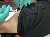 Sneak Peek Into COVID-19 Immunization Journey