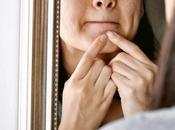 Safely Treat Your Postpartum Acne