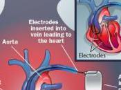 Killer Hack Victim's Implanted Defibrillator Cause Death?
