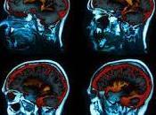 Human Brain Destructive Habits