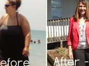 Tracy's Amazing Weight Loss Surgery Journey Photos