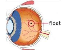 Floaters: Causes, Symptoms, Treatment