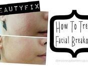 Easy Treat Facial Breakout