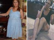 Medicare Paid Gastric Bypass Surgery Brenda's Weight Loss Story