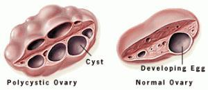 Tips Getting Through Ovary Days, Mittelschmerz